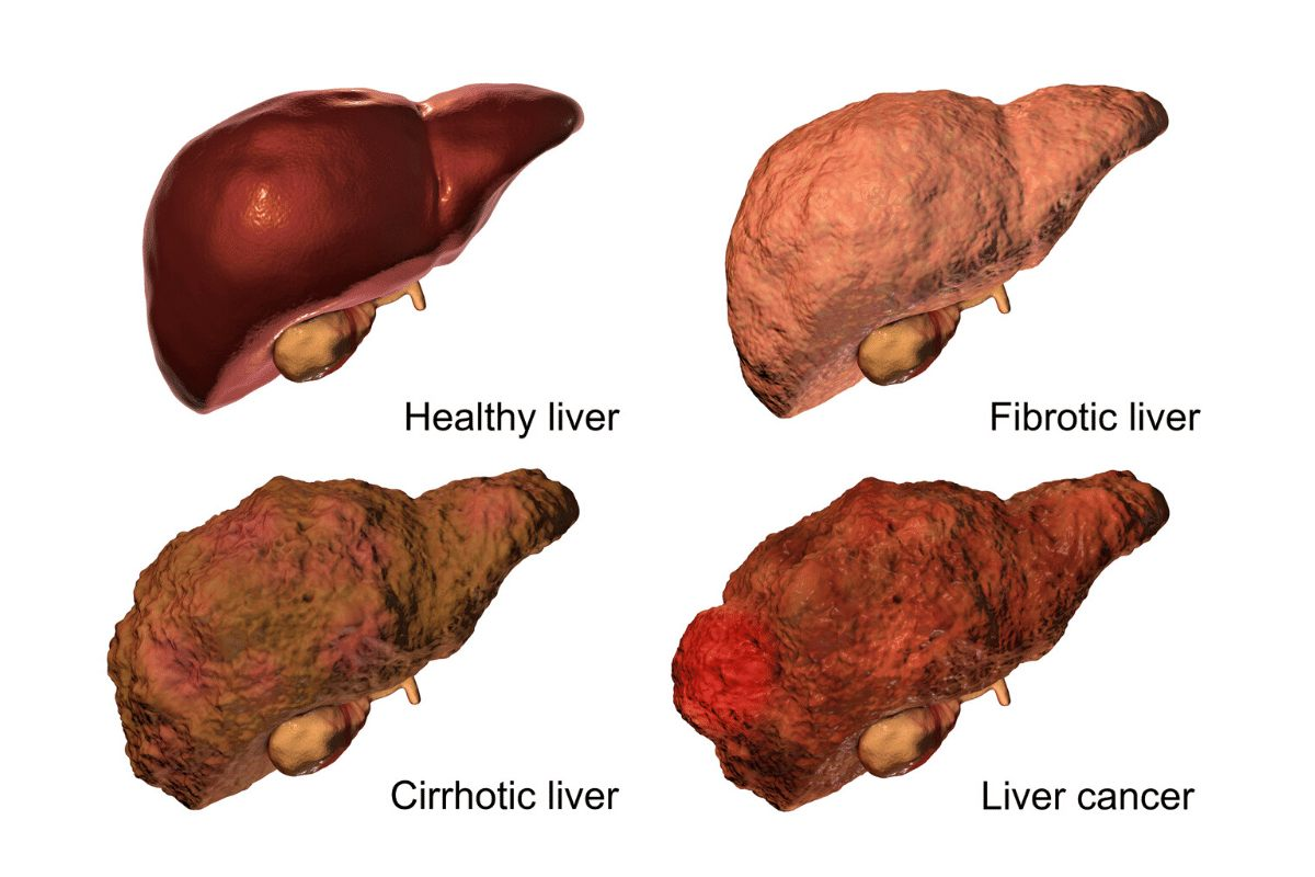 stage that scars the liver